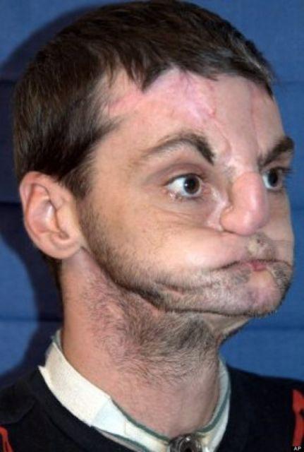STUPEFIANT : 17 ans après s'être tiré une balle en pleine tête, découvrez le nouveau visage de cet homme. 1