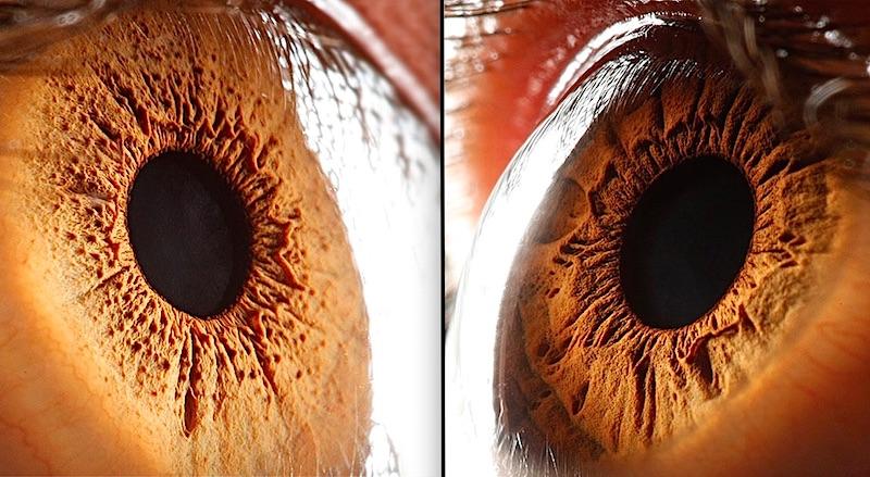 Ces 14 stupéfiantes photos vont vous faire découvrir la complexité de l'oeil humain 17
